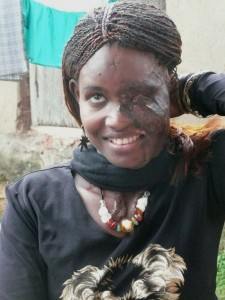 Juliette shows her damaged face from an acid attack.